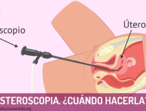 Histeroscopia. ¿Cuándo hacerla?